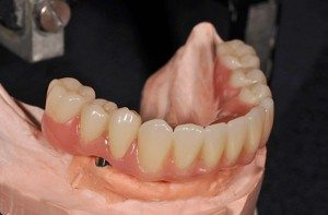 Fixed detachable implant restoration