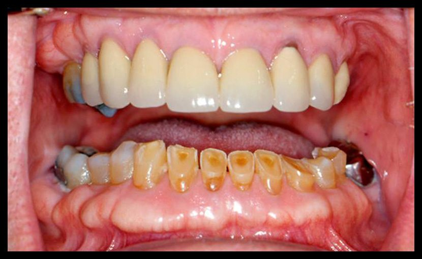 Worn Dentition Cases