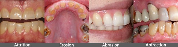 treating the worn dentition abfraction bruxism cdec